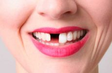Что значит видеть во сне зубы с кровью